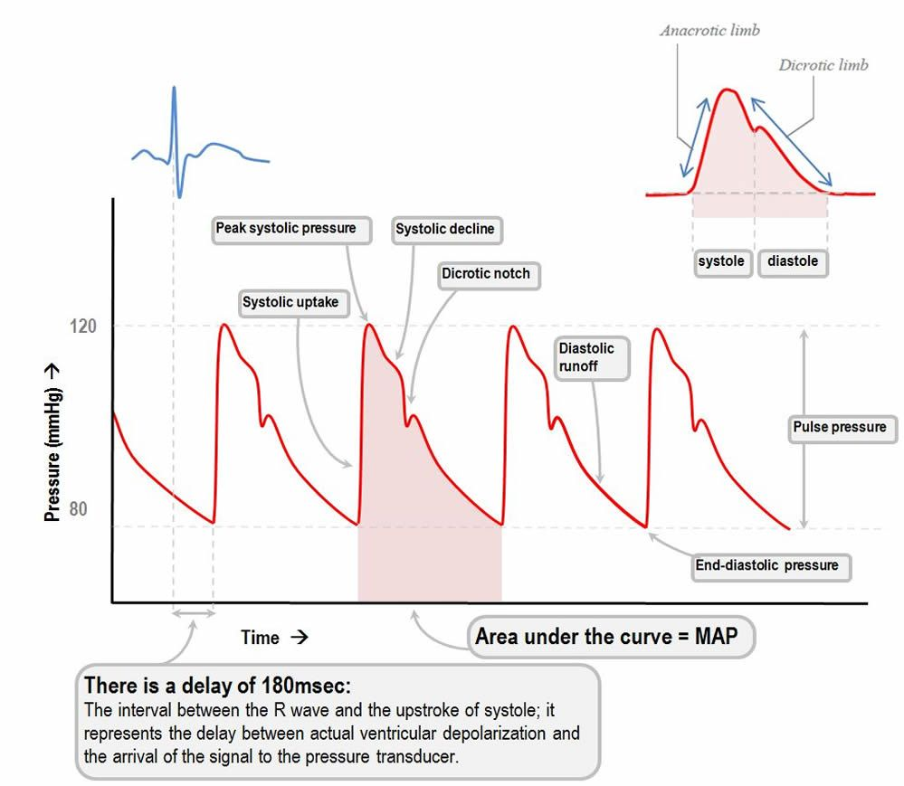 A Line Arterial Monitoring : Arterial pressure waveform cardivascular nursing