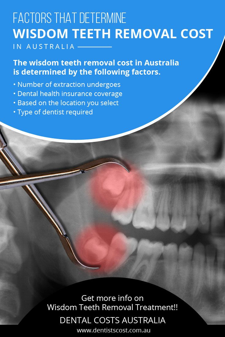 The wisdom_teeth_removal_cost in Australia is determined
