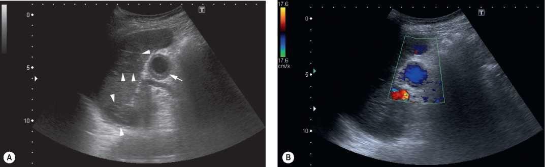 Splenic Artery Aneurysm Greyscale A And Colour Doppler B Images