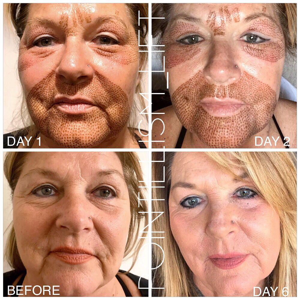 Plasma Fibroblast Skin Tightening Treatments Skin Treatments Facial Procedure
