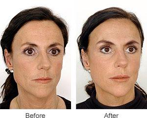 Modesto facial plastic surgeon