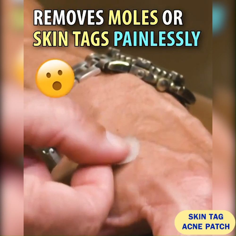 Skin Tag & Acne Patch (24 PCS)