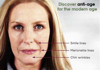 Winston Salem Dermatology & Surgery Center now offers the facial wrinkle and fold treatment known as Sculptra Aesthetic. Sculptra Aesthetic is used to correct shallow to deep facial wrinkles and folds which are treated with the appropriate injection technique. Sculptra Aesthetic is suitable for:   Deep folds between the nose
