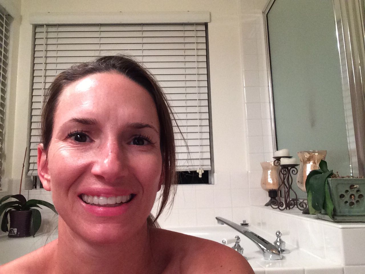 10/7 evening  Hydrocortisone cream saved the day! I read the