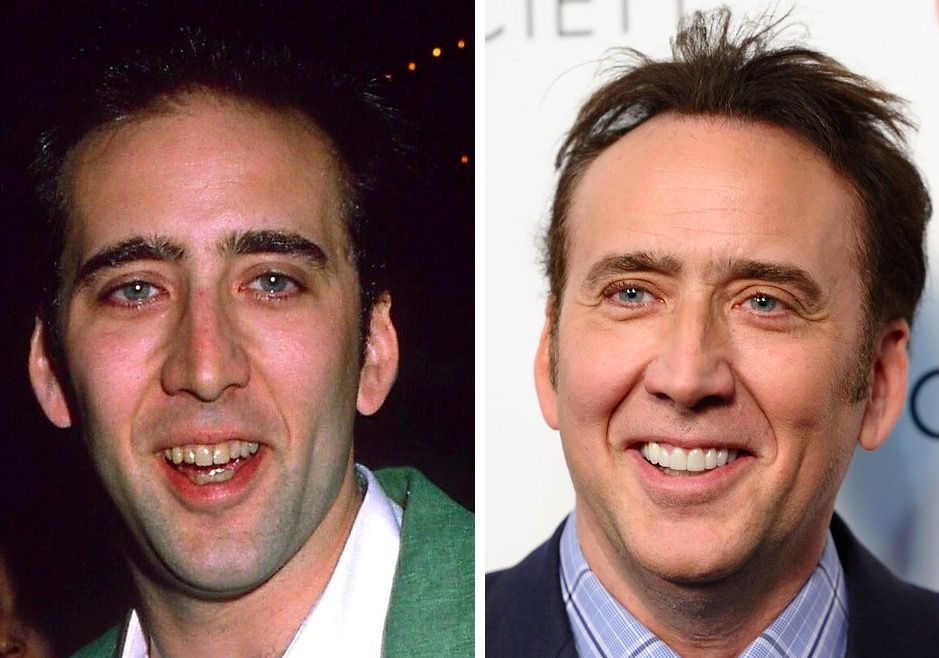 Nick Cage Teeth Before And After Dentistry