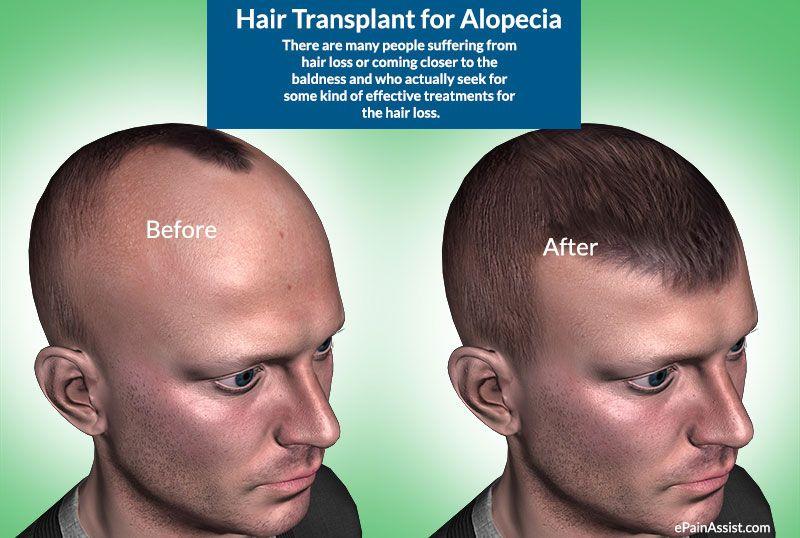 Hair Transplantation Help hair loss, Hair transplant