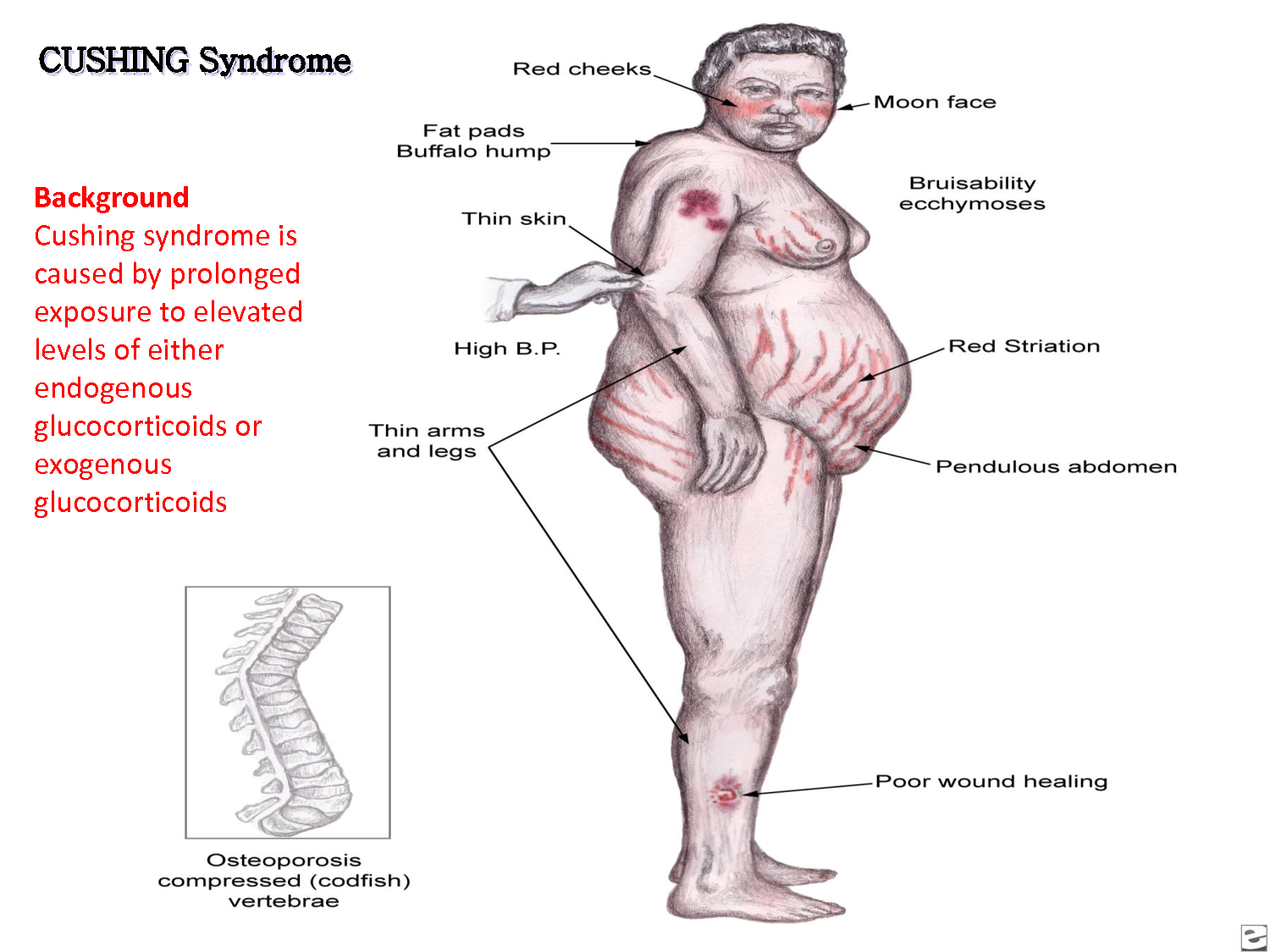 addisons disease and weight loss