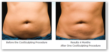 Targeted fat loss stomach picture 8