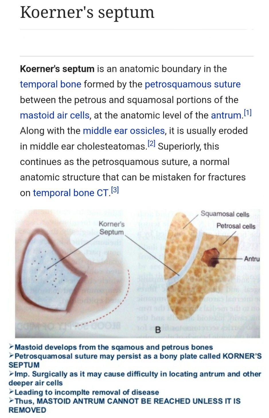 Koerner septum - Petrosquamous suture ... | ENT | Pinterest