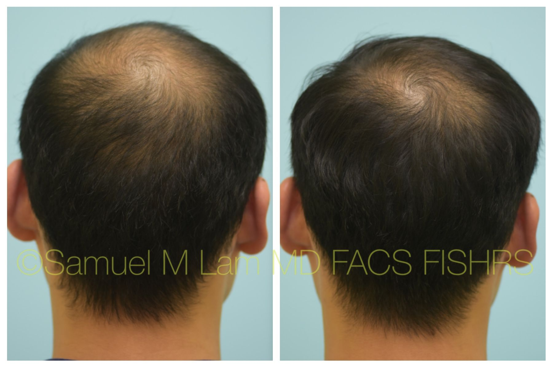 This 36 Year Old Asian Male Is Shown Before And Five Months After Starting 82f Topical Finasteride Minoxidil With Good Early Results Minoxidil Topical Olds