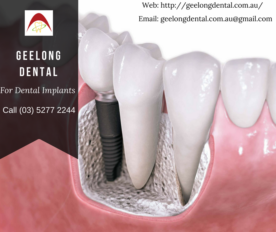 Pin by Around Geelong Dental Care on Dental Clininc in