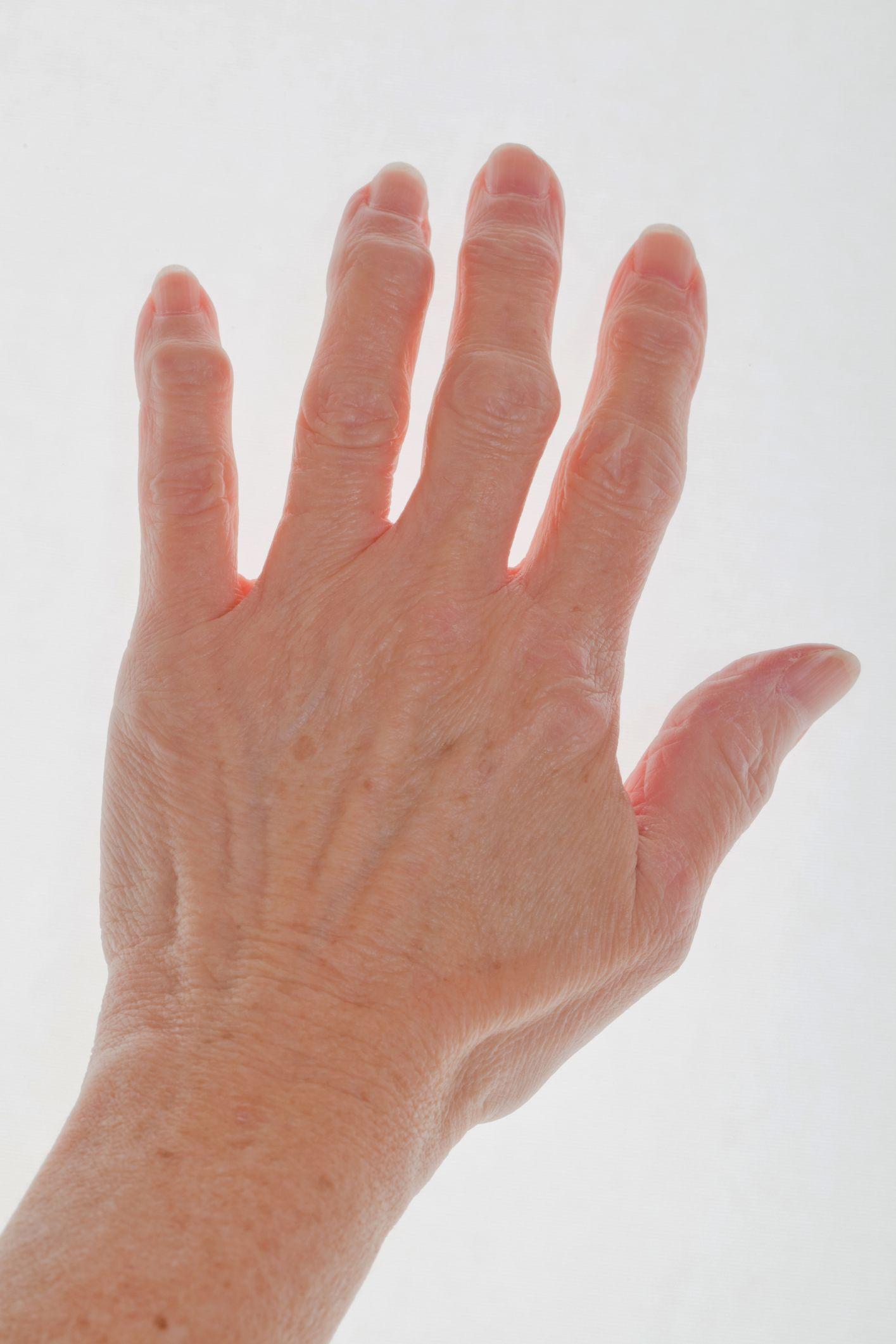 Ring Finger Joint Bone Spur