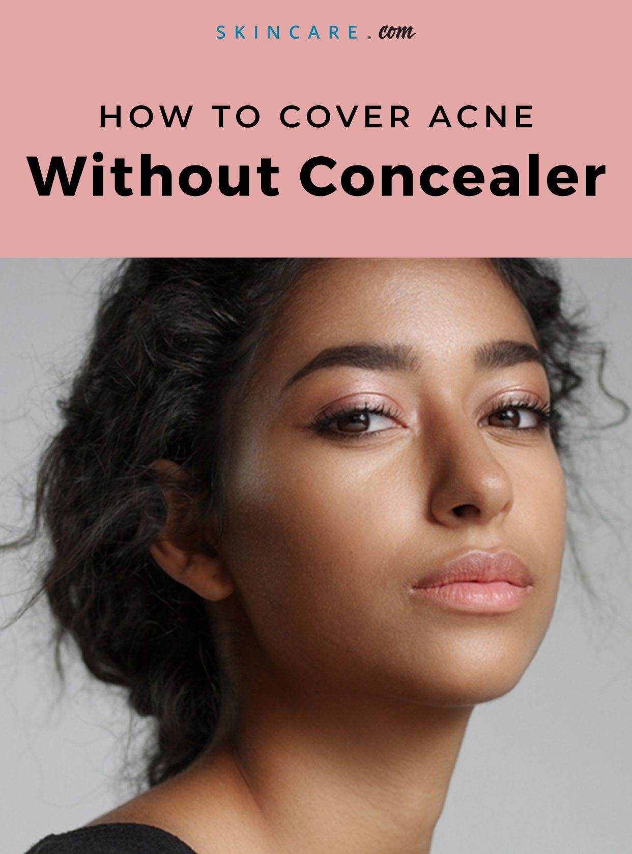 acne concealear hacks skin skincare skincareroutine