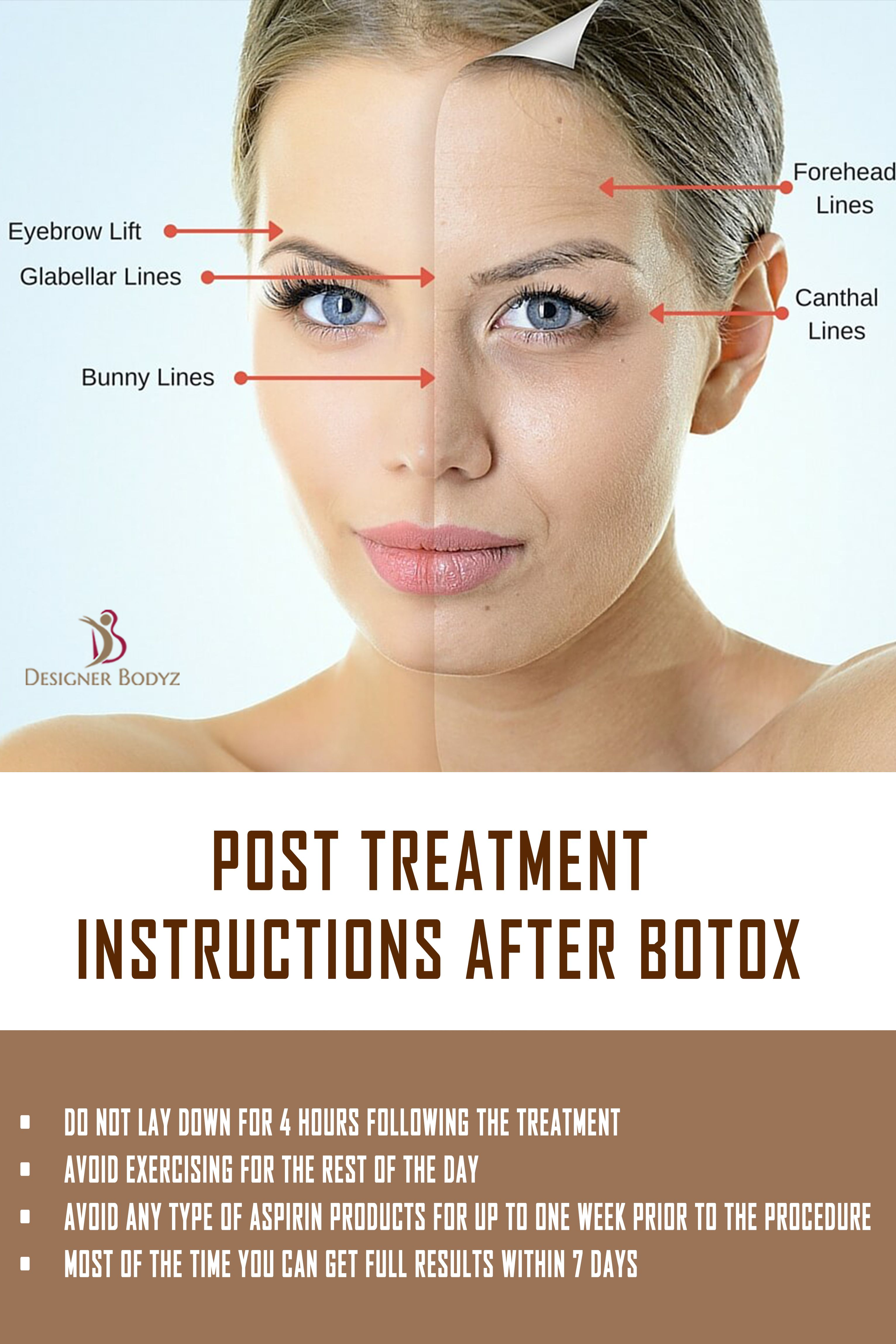 When Can You Exercise After Botox Exercise Poster