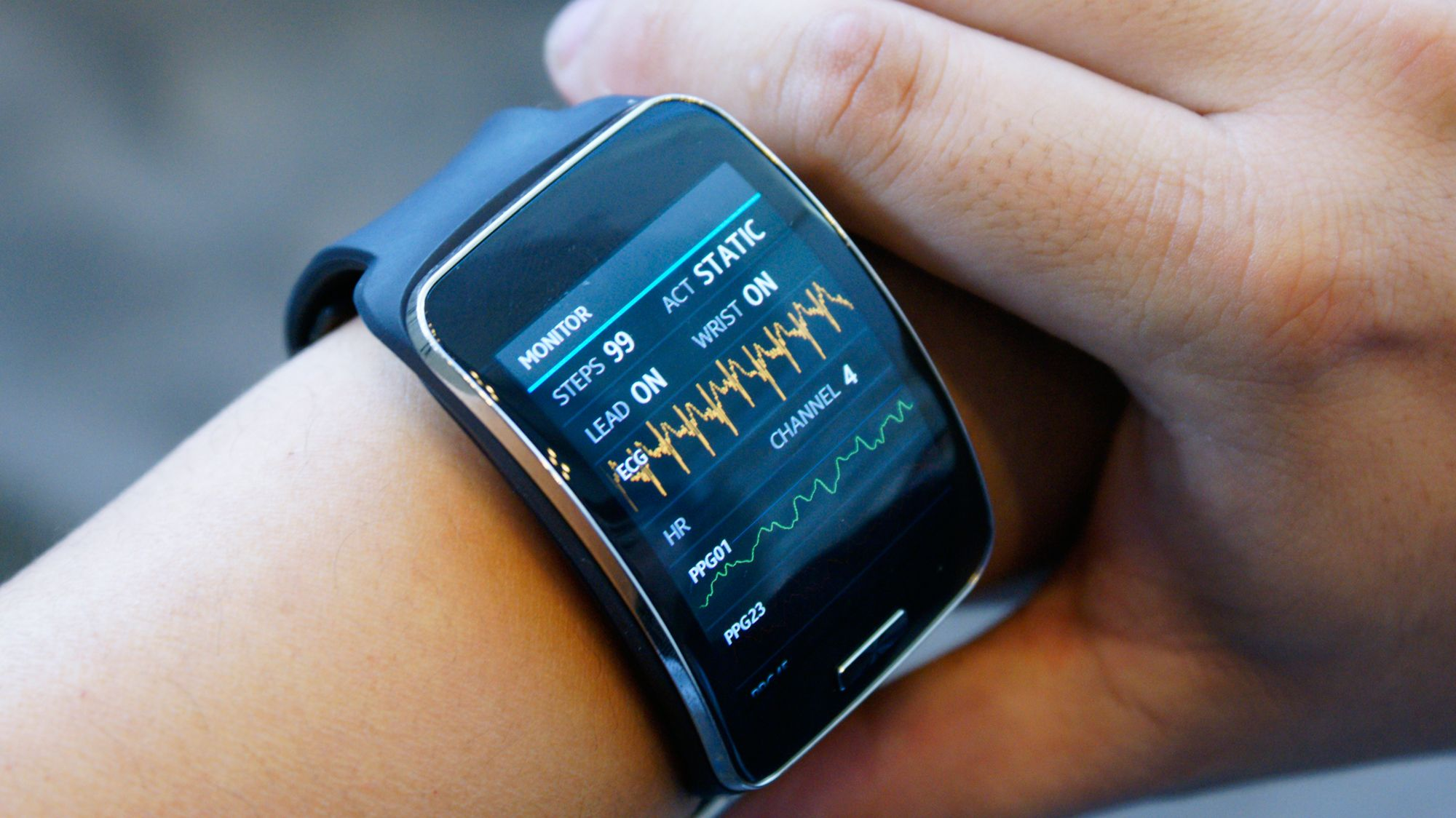 Samsung Simband- A Wearable for Monitoring your Health ...