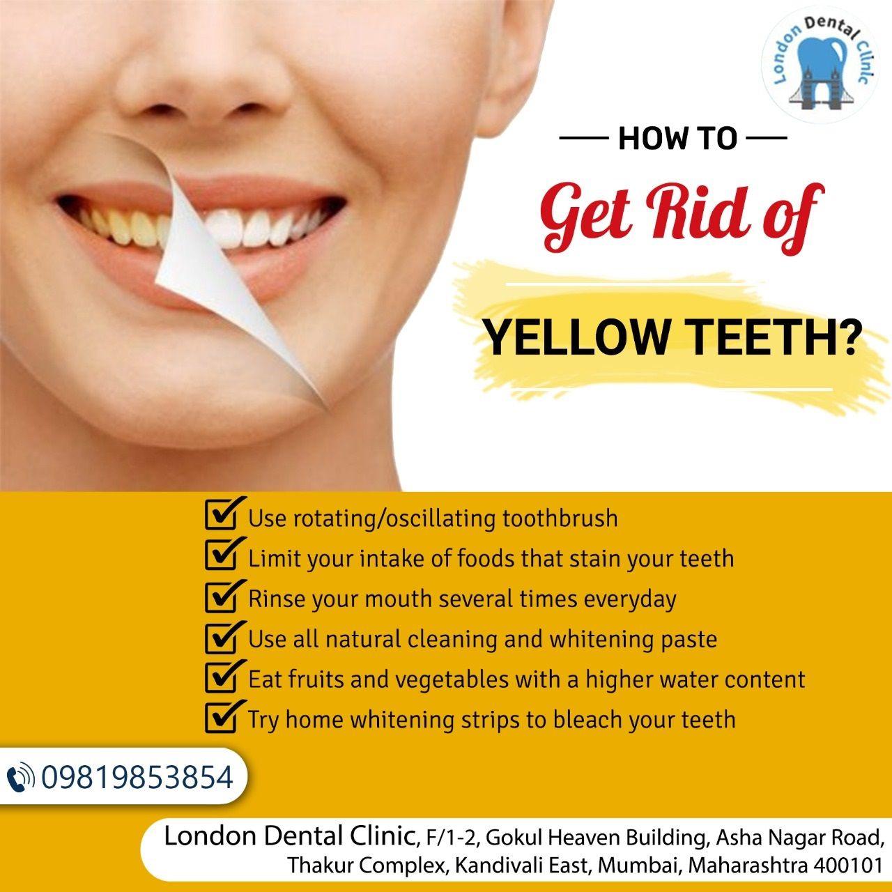 How to get rid of yellow teeth dental cosmetics