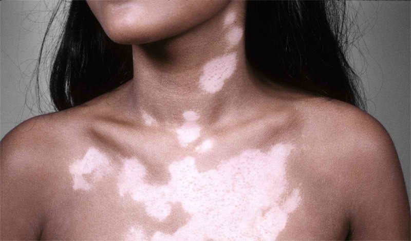 Pin By Miriam On Vitiligo Vitiligo Treatment Vitiligo Treatment