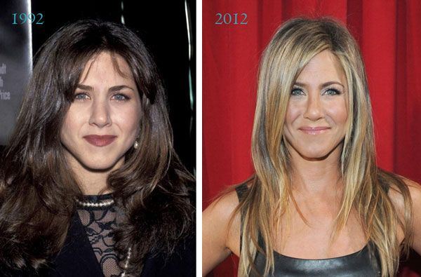 Jennifer Aniston Before And After Nose Job Before Amp After