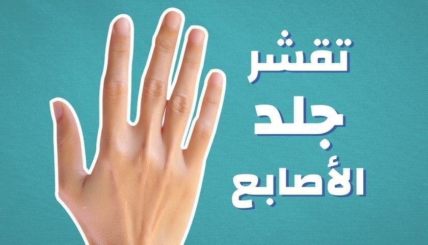 تقشر جلد الأصابع Peace Gesture Peace