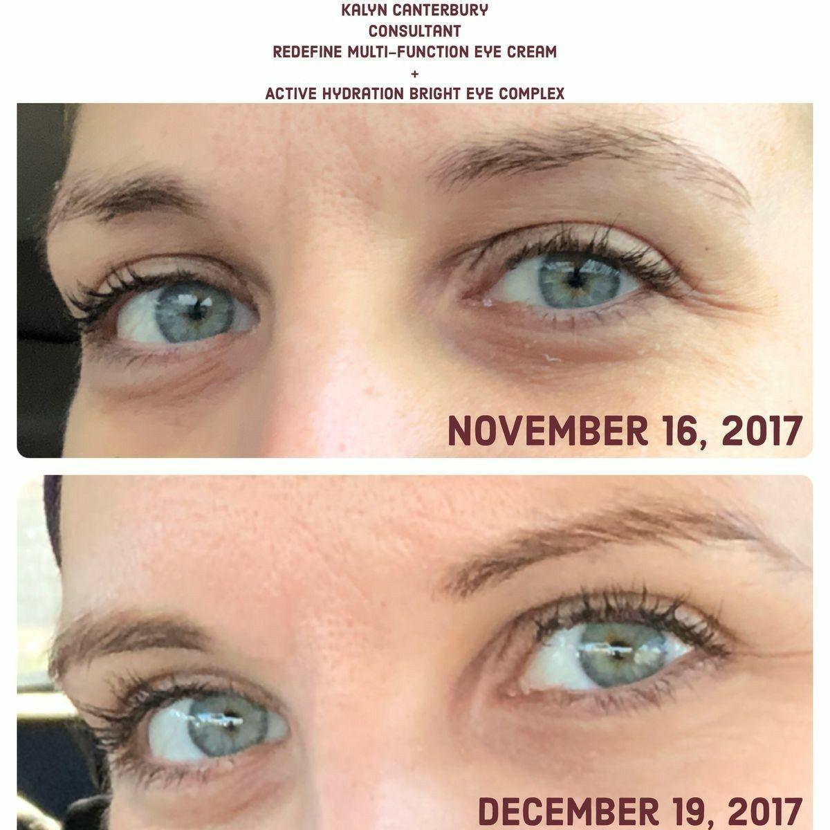 8b3ab87c4ebf234c4e26658ff7db75f8 - How To Get Rid Of Eye Wrinkles And Crow S Feet