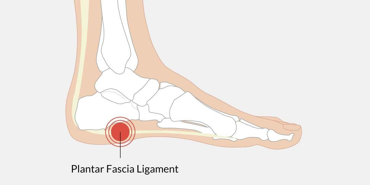 pain in arch of foot illustration | medical, remedies | Pinterest ...