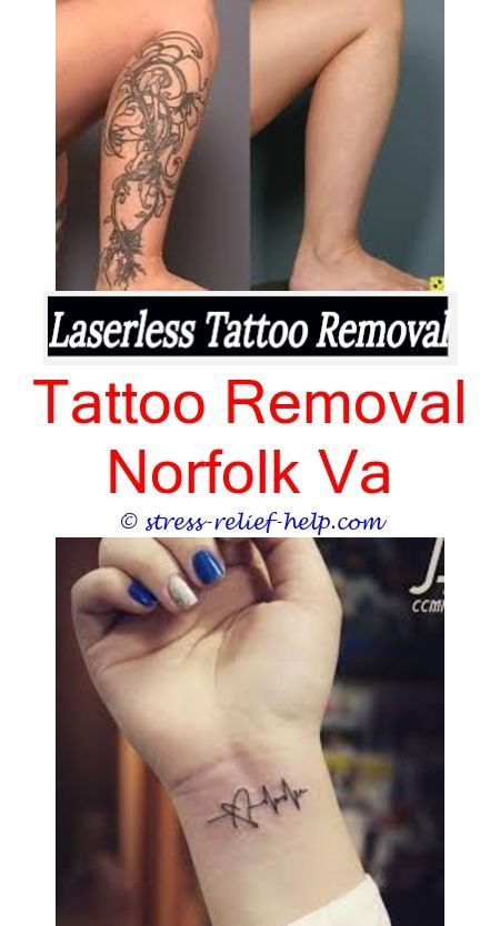 Henna Tattoo Eyebrows Cost: Fastest Tattoo Removal Cream.Tattoo Removal Jacksonville