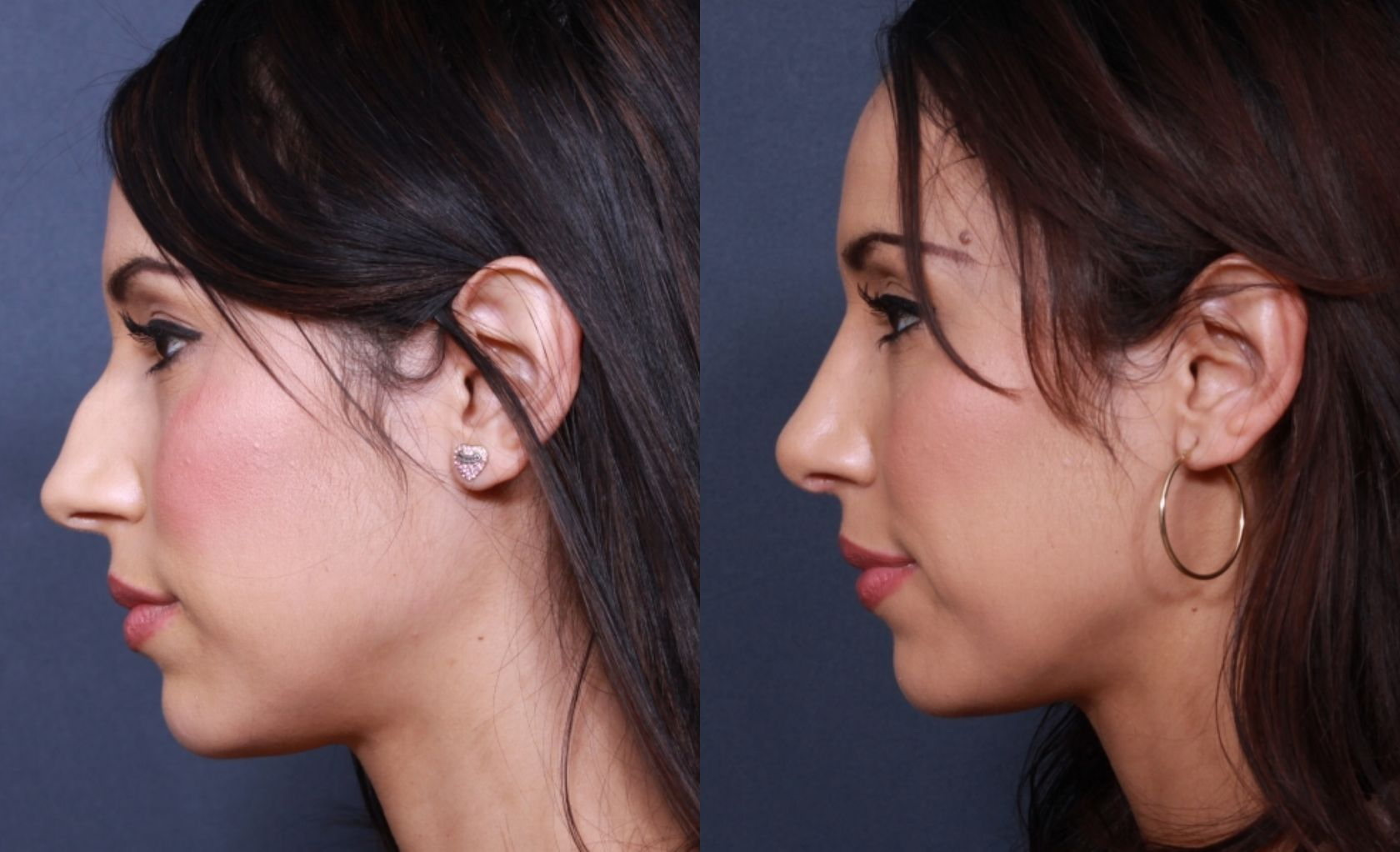 Pin By Riteesh Rajan On Oral Surgery