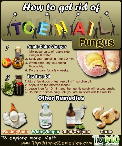 Natural Remedies To Treat Black Toes