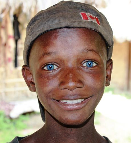 Zimbabwean boy with blue eyes.The photographer, Vanessa Bristow, called it The Boy with the Sapphire Eyes.