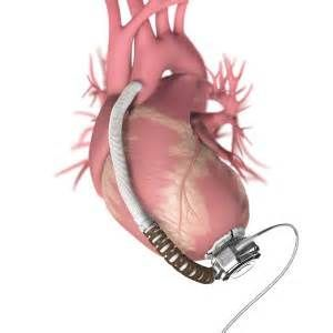 lvad heart pump - - Yahoo Image Search Results
