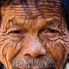 As people age, it's normal to get wrinkles. And a person who has spent a lot of time in the sun or smoking cigarettes might have a lot of them.