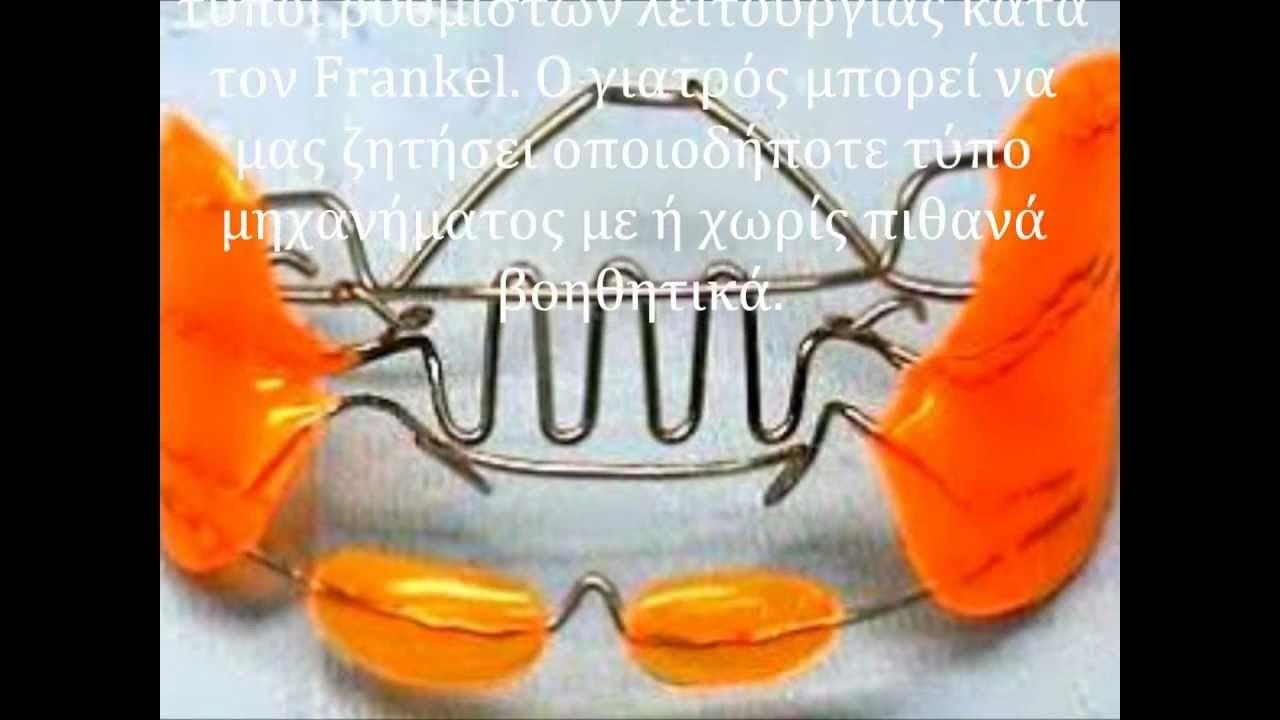 Orthodonticlab Lyronis Frankel I Ii Iii Wmv Orthodontic Appliances Orthodontics Appliances