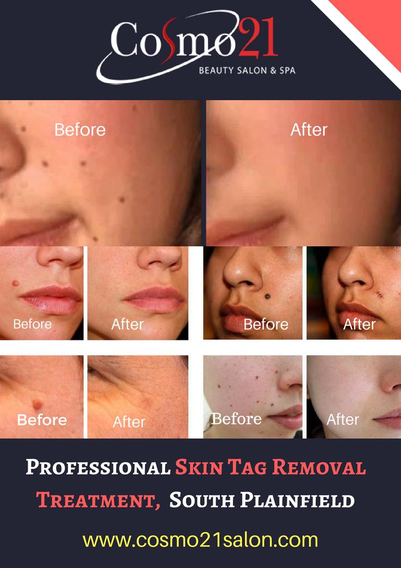 Professional Skin Tag Removal Treatment South Plainfield Nj Skin