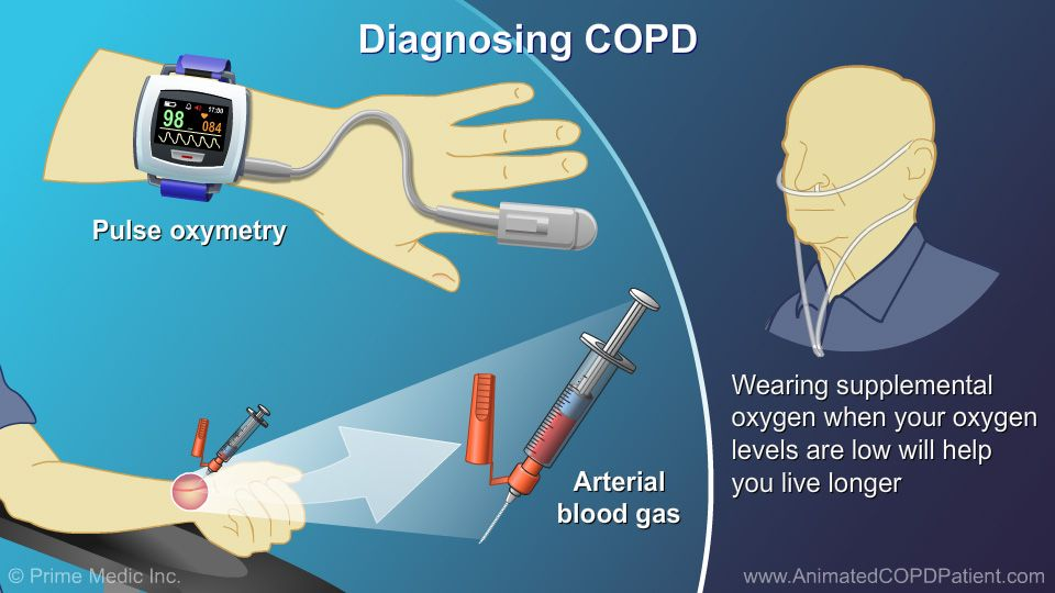 Diagnosis and evaluation of copd copd diagnosis