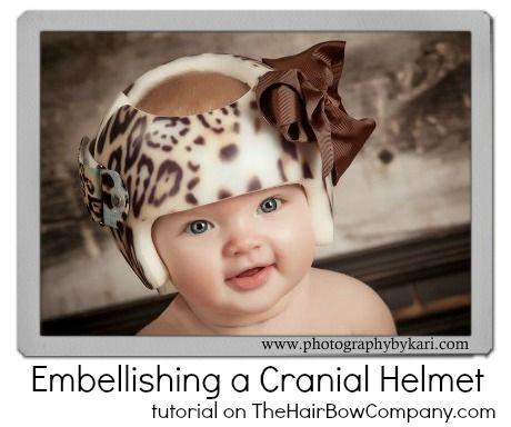 Embellishing A Cranial Helmet Baby Helmet Baby Helmet Design Girls Ideas Cranial Helmet Designs Girl