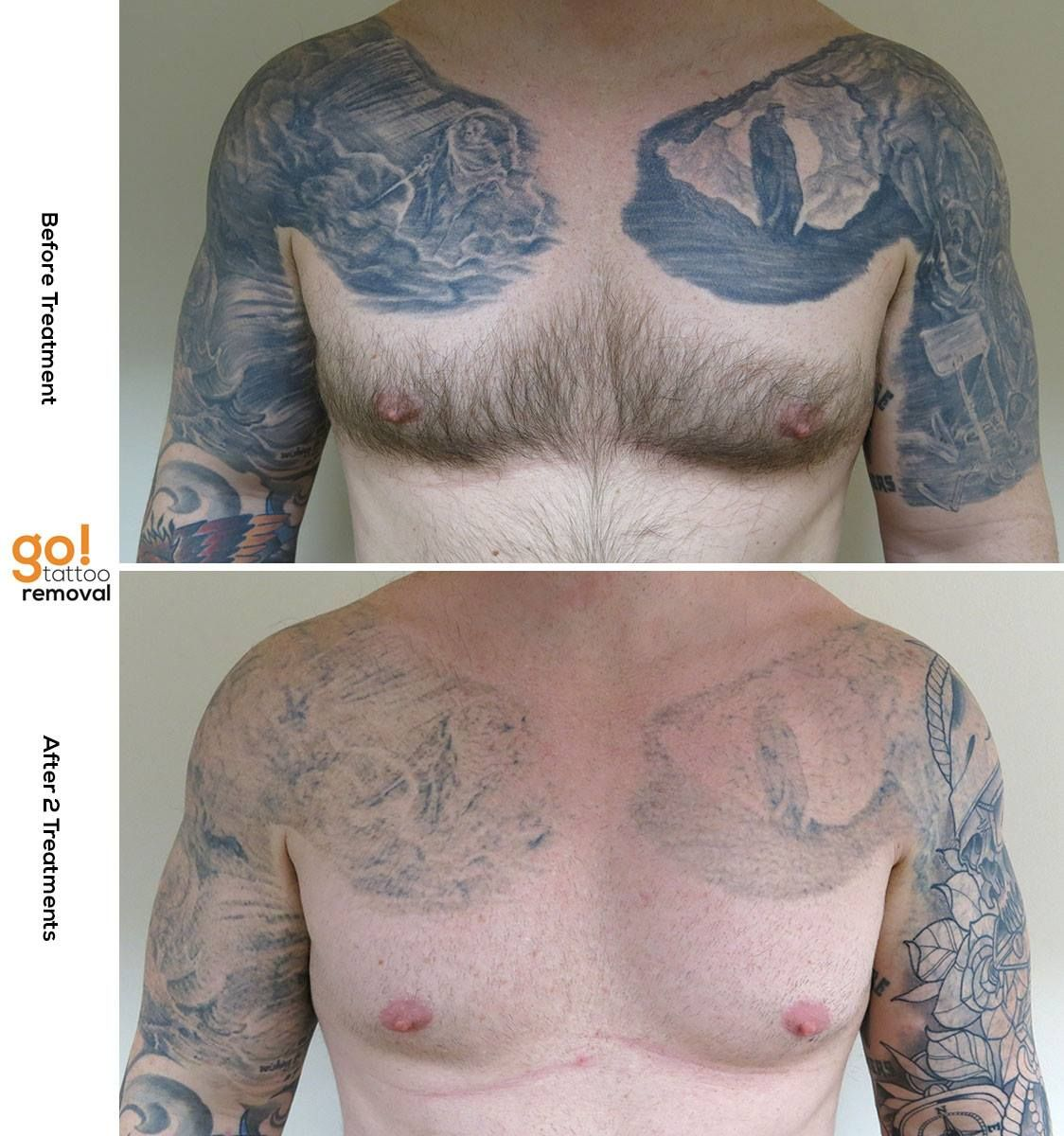 This Client Brought A Huge Project To Us Fade Both Half Sleeves And Chest Plates So They Could Be Covered And Changed Tattoo Removal Laser Surgery New Tattoos