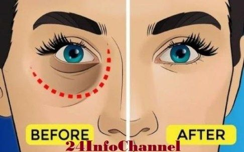 Remove Dark Circles And Under Eye Bags With Baking Soda and Lemon Naturally #darkcircle