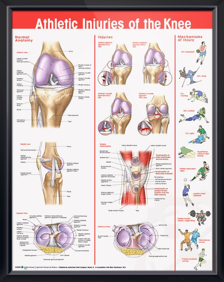 Athletic Injuries of the Knee Chart 20x26   Health   Pinterest   Anatomy