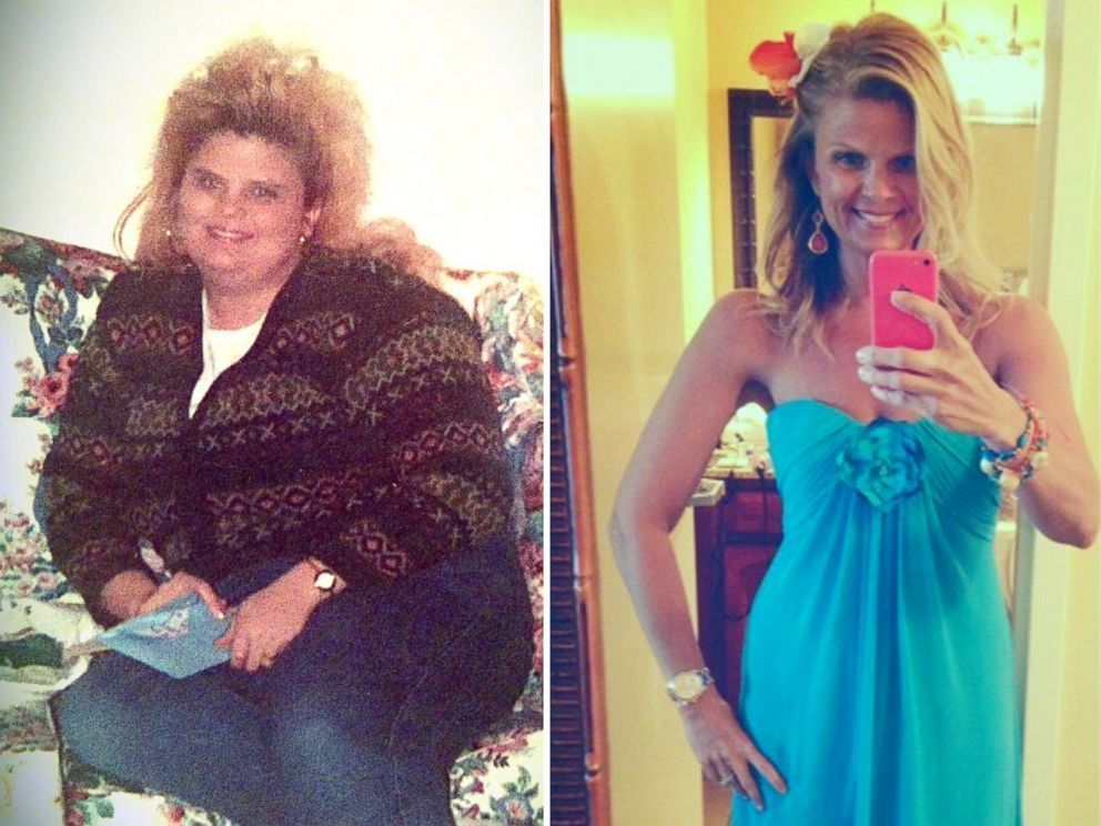 Extreme Weight Loss Success Stories How They Lost 100 Pounds Or