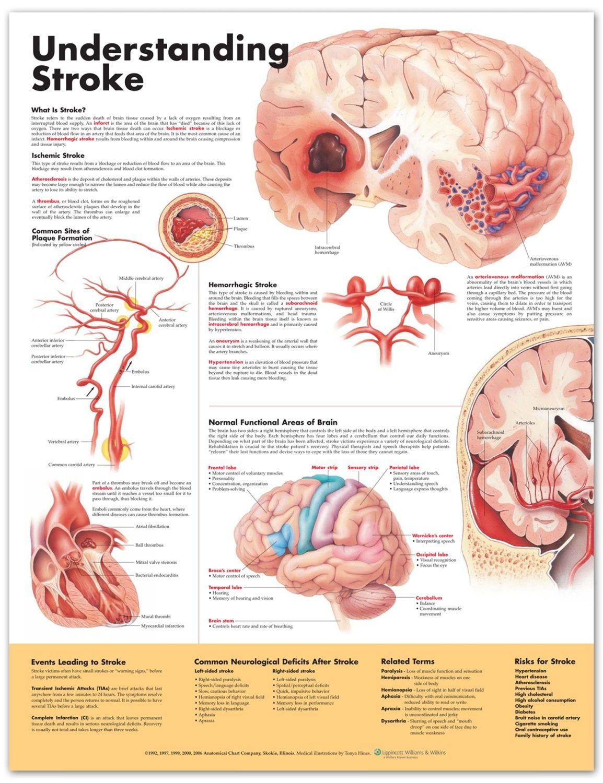 hight resolution of stroke chart stroke poster anatomical chart company anatomystuff