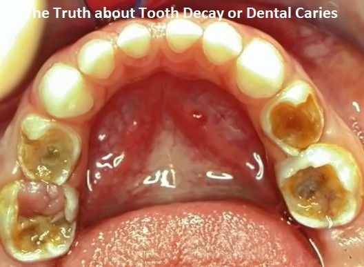truth about tooth decay Dr david okano shares what the truth is behind these toothpastes, and what is  most  dr okano: in terms of prevention of tooth decay, no.