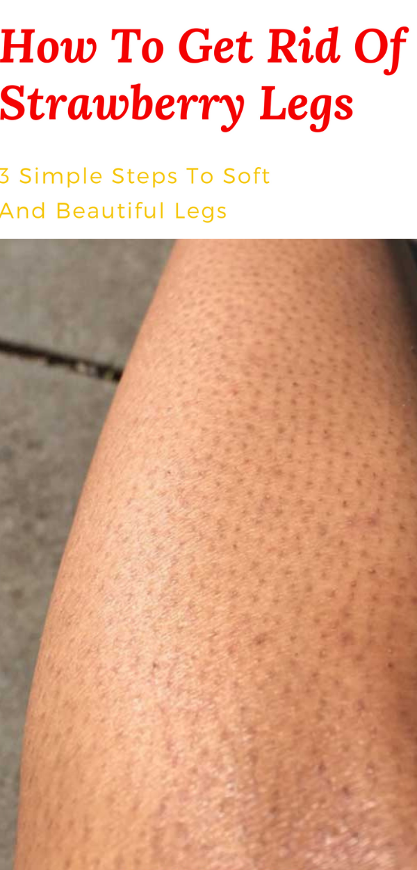 How To Get Rid Of Strawberry Spots On Legs