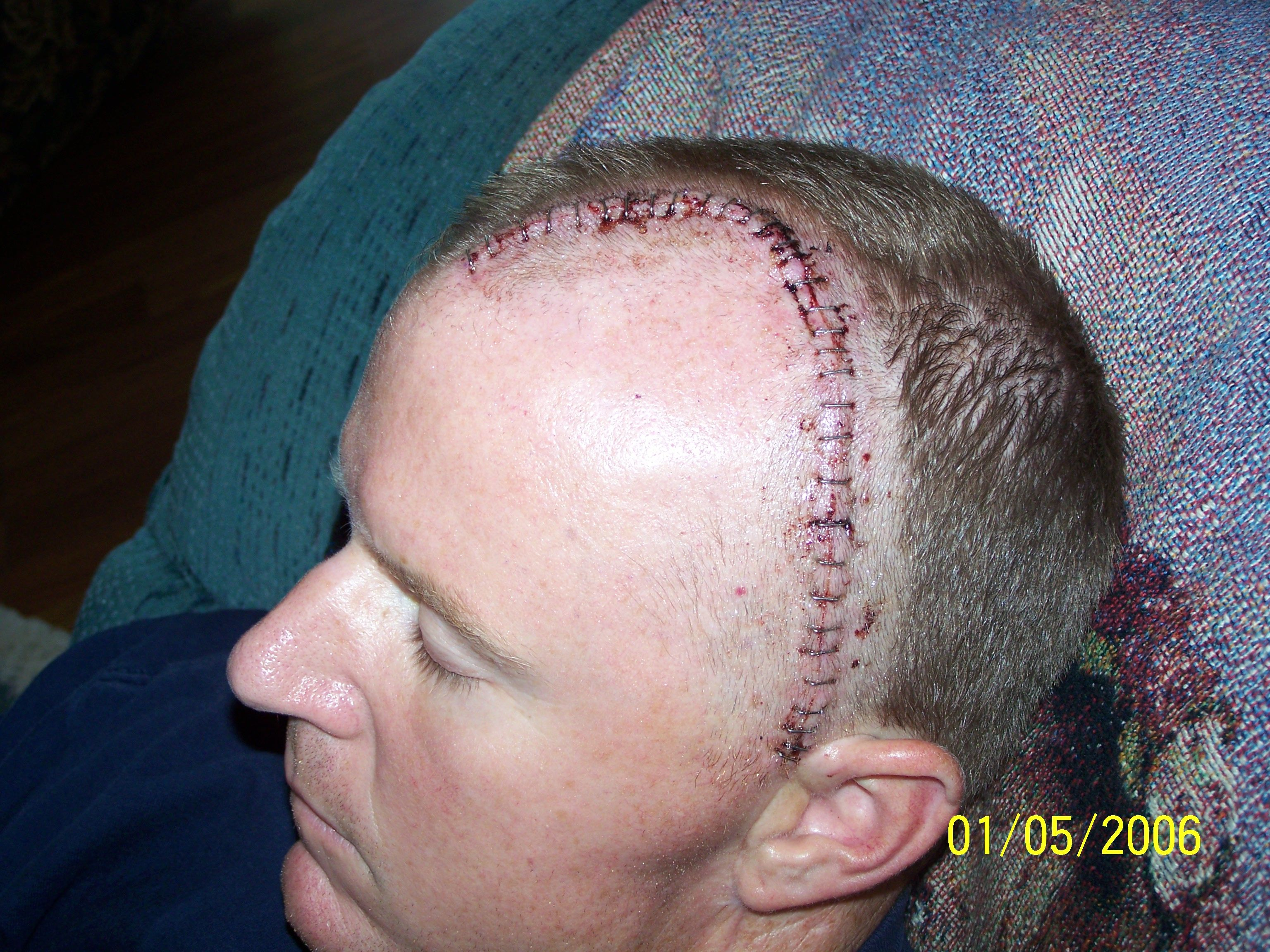 Hair shaved for brain surgery 1
