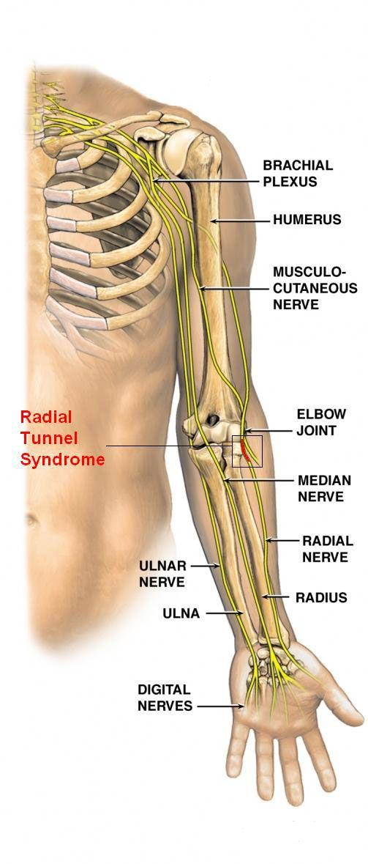 Kleiser Therapy treats radial tunnel syndrome | Msj. | Pinterest ...