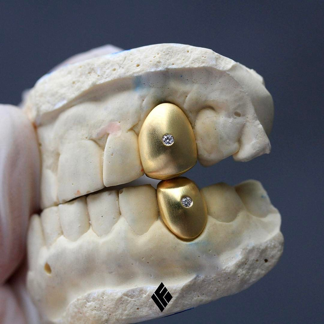 14kt Satin Finished Caps With Two Diamonds In The Middle Special Made For Brockymarciano Grillz Customjewelry Ifand Grillz Hip Hop Jewelry Diamond Grillz