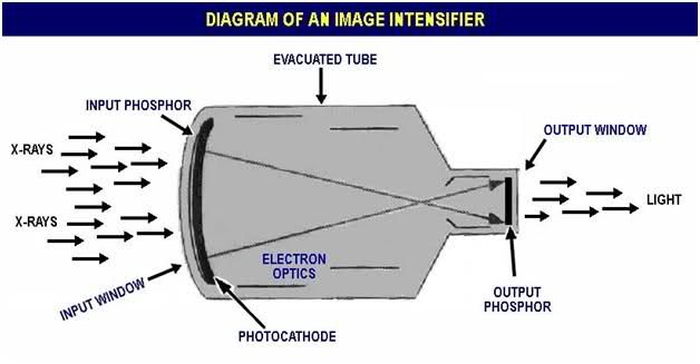 An image intensifier plays an important role in diagnostic imaging an image intensifier plays an important role in diagnostic imaging and its role is similar to ccuart Choice Image