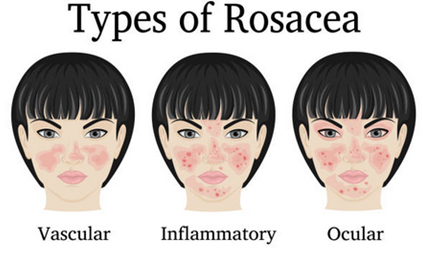 Skin Redness Makeup in 2020 Rosacea, Skin redness, Skin