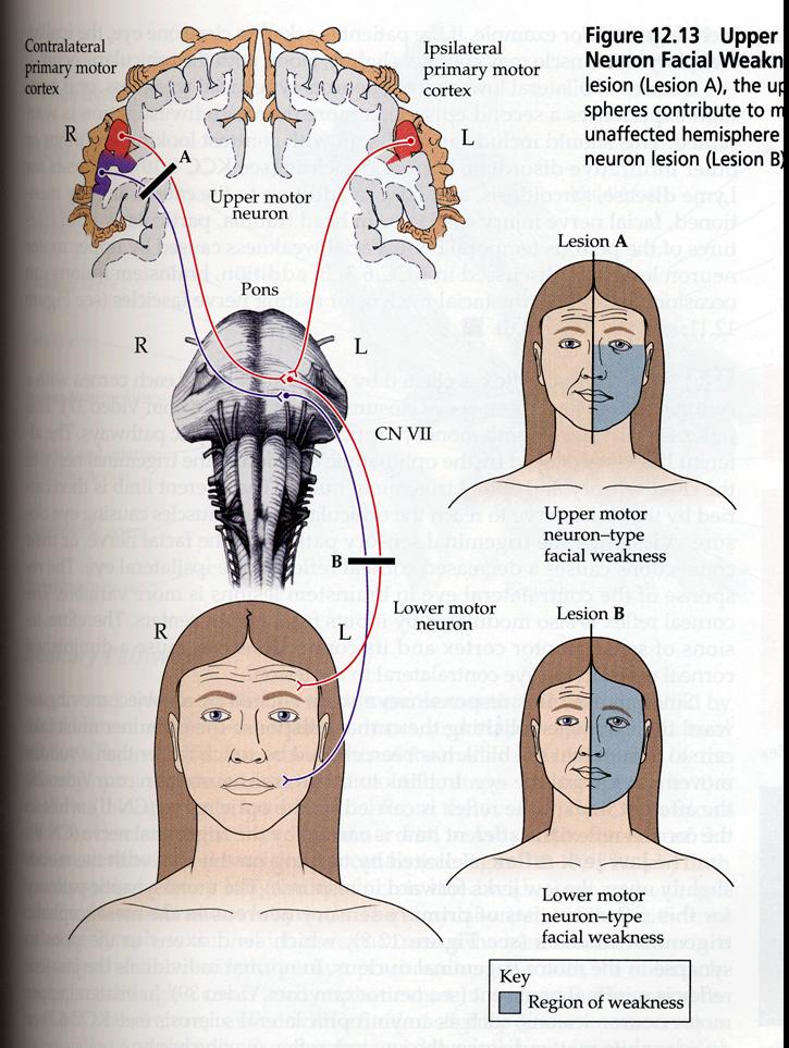 upper motor neuron lesion - Google Search | Tratamientos Faciales ...