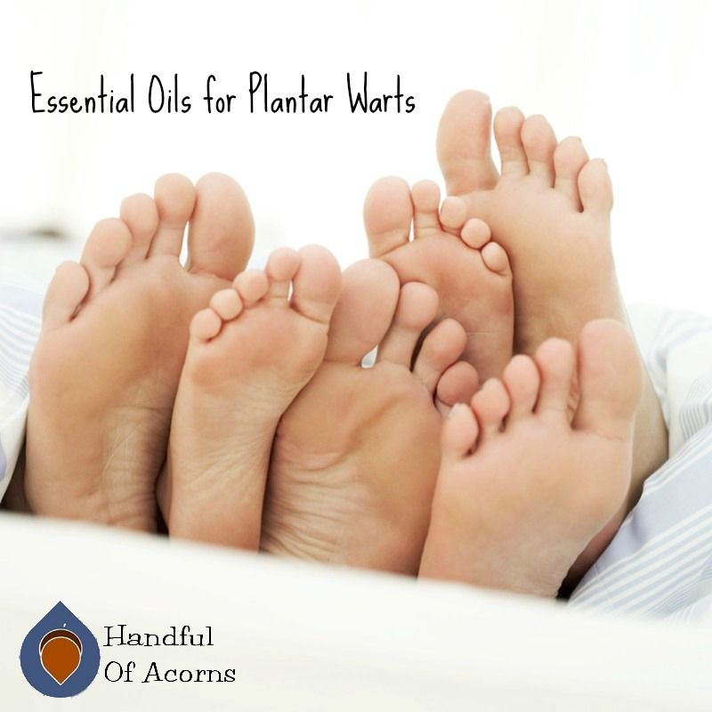 Eliminating Plantar Warts Essentials And Oil