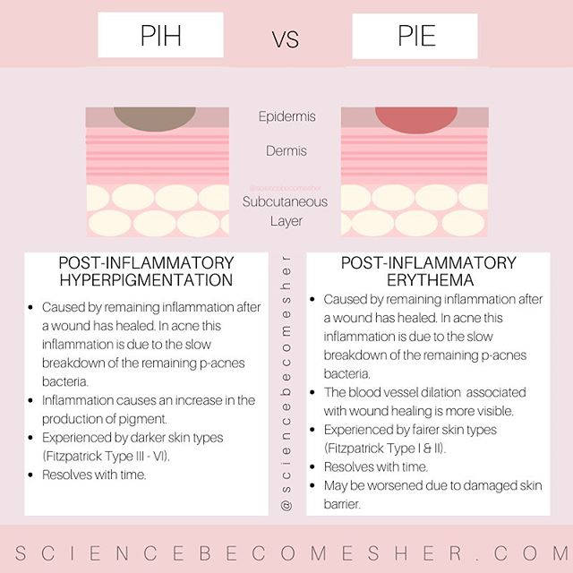 The Difference Between Pie And Pih Google Search In 2020 Acne Marks Natural Acne Skin Care Acne Scar Removal Treatment